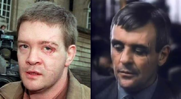 Ravics Anthony Hopkins Wounds Remind A Bit Of The Visible On Trevor Rees Jones Face